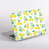 Yellow Lemons Pattern MacBook Case Side  | Available at Dessi-Designs.com