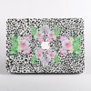 Tropical Paradise MacBook Case Front  | Available at Dessi-Designs.com